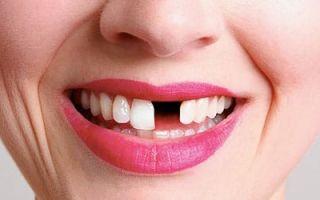 Во сне выпали зубы — что предвещает сновидение